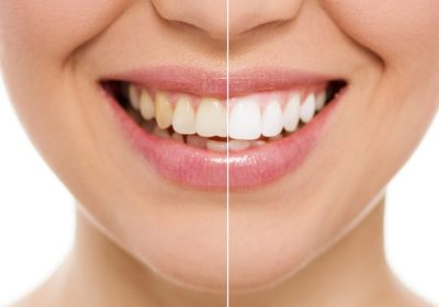 Зубная паста  всегда индивидуально