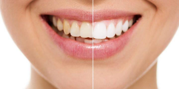 Белые зубы?